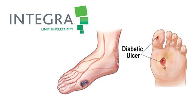 pansement pied diabetique